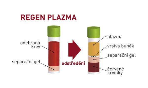 Omlazení pomocí plazmaterapie