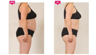 proměna snížení váhy za 4 měsíce