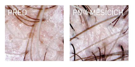 Andogenetická alopecie