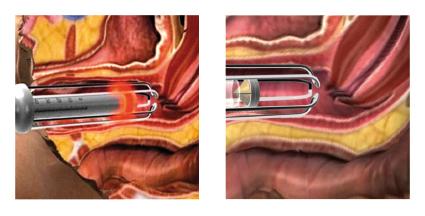 nechirurgické laserové metody inkontinence