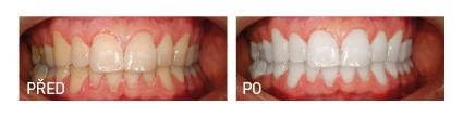 bělení zubů lazurit