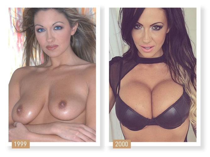 Jodie Marsh plastika prsou
