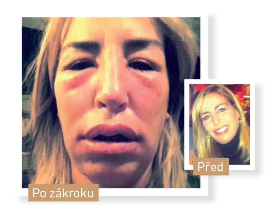 Michelle plasticka operace