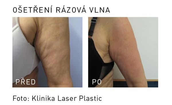 rázová vlna laser plastic paže