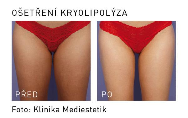 kryolipolýza mediestetik stehna