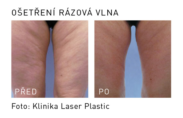 rázová vlna laser plastic stehna