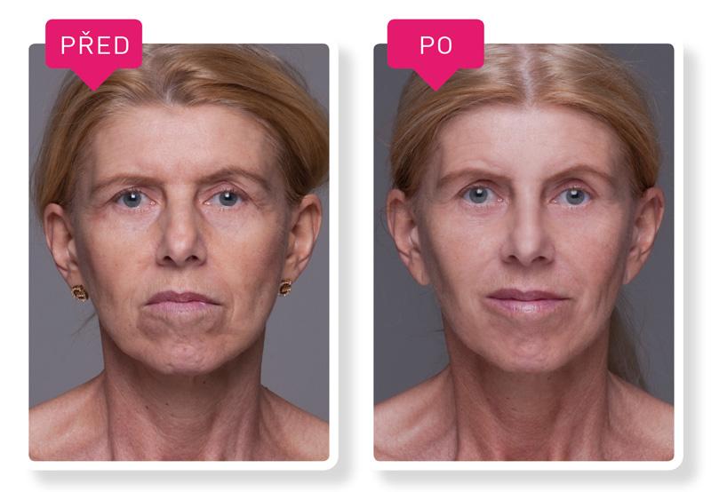 před a po proměny